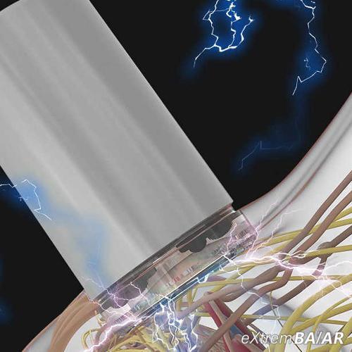 Magic Jar Elektromos masszírozó készülék 2db